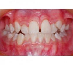 01-ortodoncia-autoligado