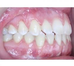 02-ortodoncia-cirugia