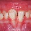 antes 01-ortopedia-mandibular