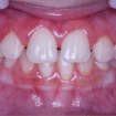 despues 02- ortopedia-mandibular
