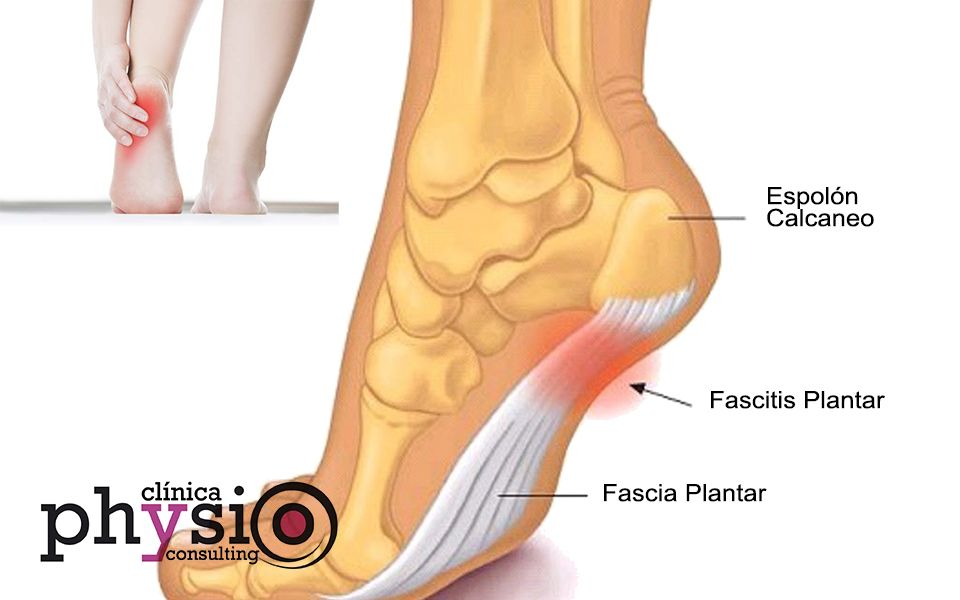 Clínica-Physio-Consulting-Fascitis-Plantar