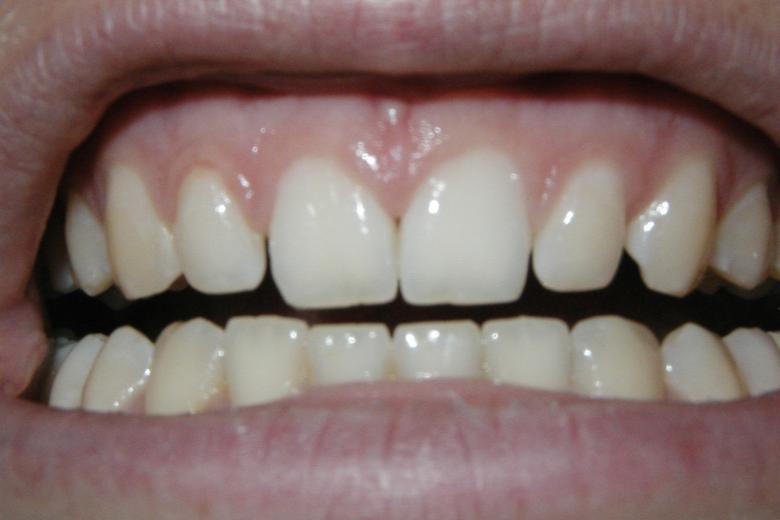 imagen de la boca y encías