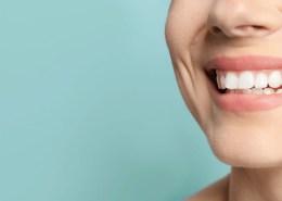 Blanqueamiento en Clínica Dental Sant Rafel