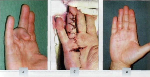 eliminacion de cicatrices Z PLASTIA 011
