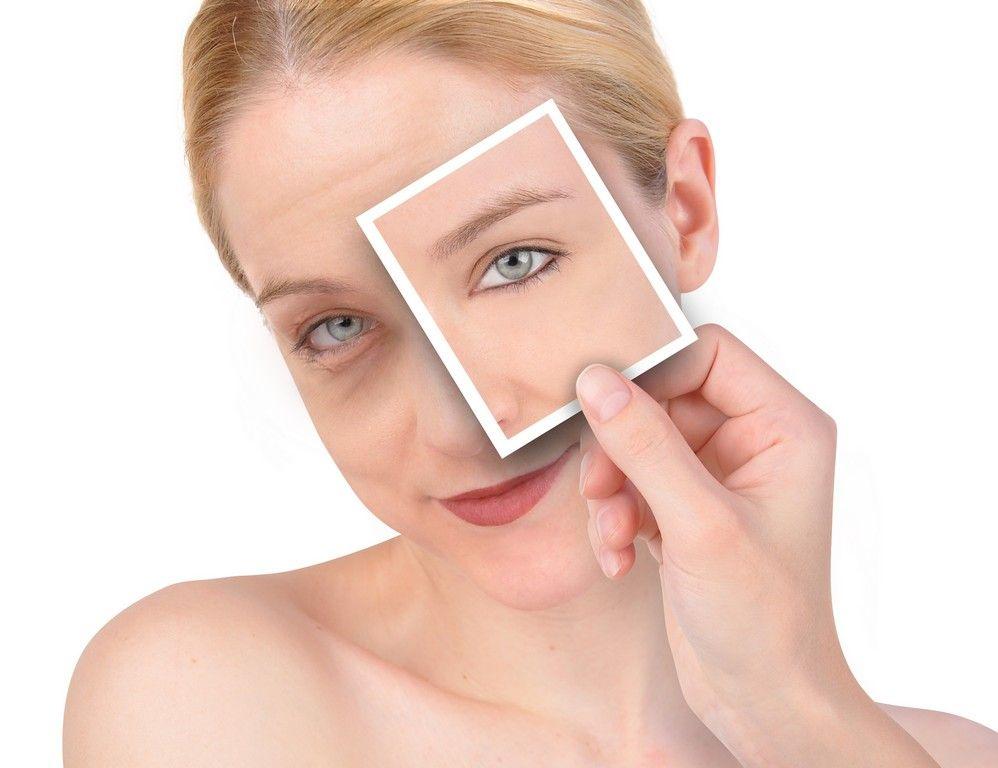 Blefaroplastia, Exceso de piel en los párpados