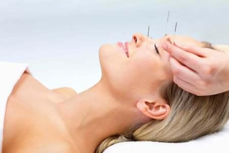 acupuntura-clinica-speciallita Acupuntura