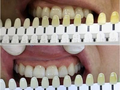 """2-2-400x300 Resultado - """"Março e Abril com dentes mais brancos"""" Notícias"""