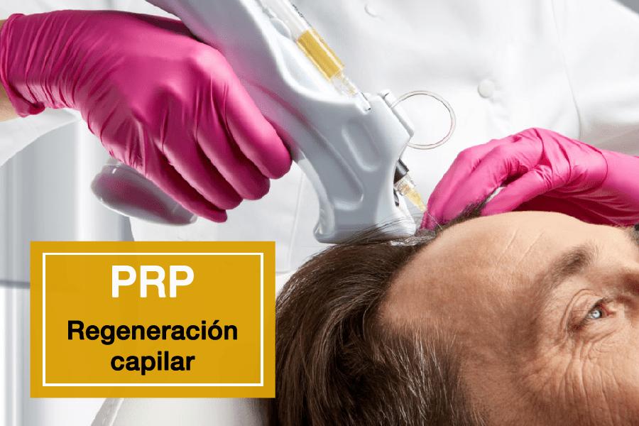 Plasma Rico en Plaquetas para la regeneración capilar