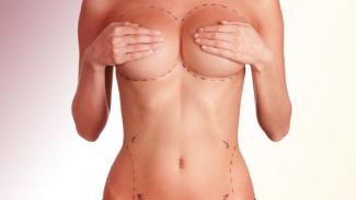 cirugia senos corporal