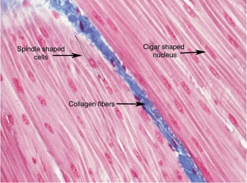 Fibra de colágeno vista de su acción estruturante en el tejido al microscopio electrónico