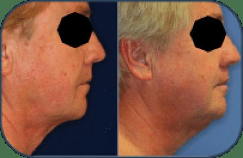 Antes y después Aqualix1:2 Tratamiento Facial