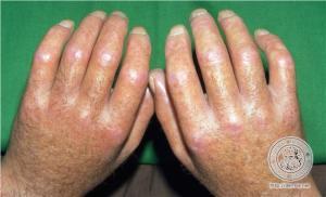 Esclerodermia Enfermedad No Tan Rara Centro Clínico Y