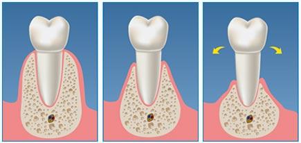 clinica-viana-novara_parodontite-2
