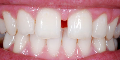 tandmellemrum
