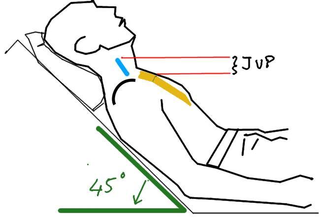 Jugular venous pressure (JVP   CLINIPEDIA