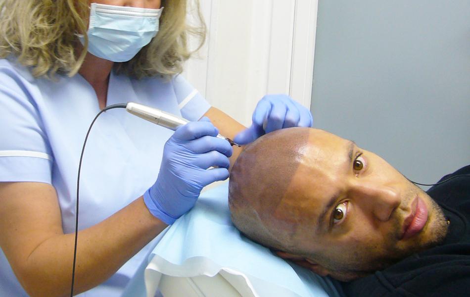 dermographie capillaire