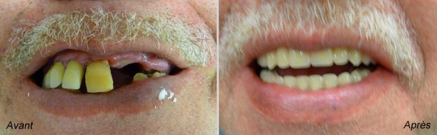 couronne dentaire avant apres