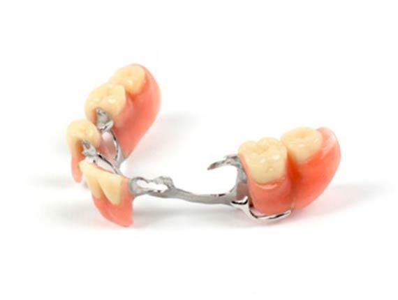 Clinique Cloutier denturologiste Montréal | Prothese partielle amovible