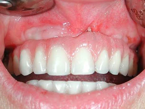Clinique Cloutier denturologiste Montréal | Prothese temporaire immediate sur implants