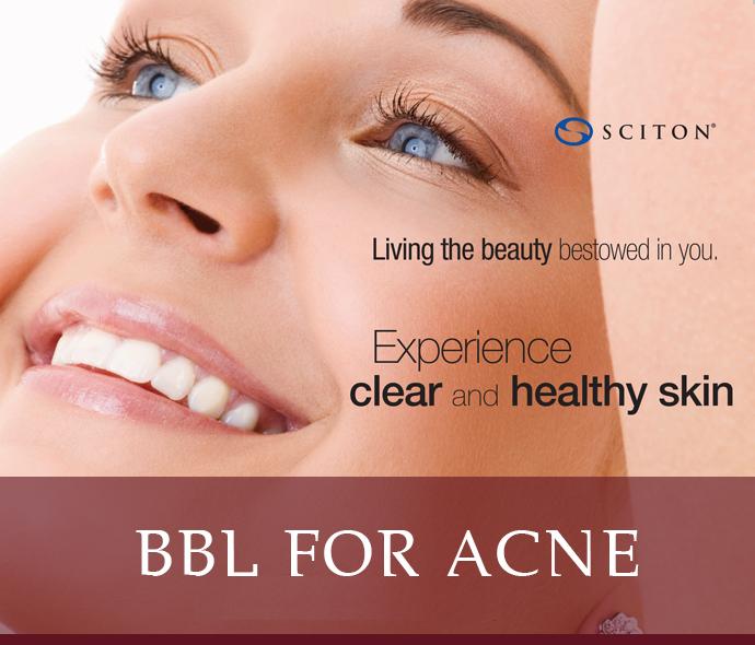 BBL For Acne - Dallas Medspa and Laser Center | Clinique Dallas