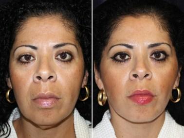 Facelift - Dallas Plastic Surgery Medspa and Laser Center | Clinique Dallas