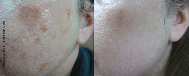 Forever Young BBL Younger Skin | Medspa and Laser Center | Clinique Dallas