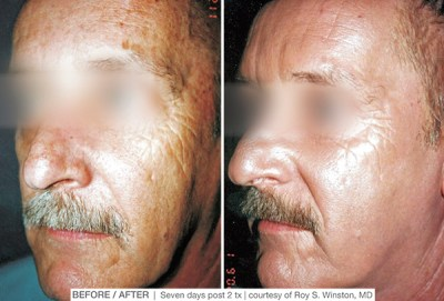 MicroLaserPeel Before and after - Clinique Dallas Plastic Surgery, Medspa & Laser Center