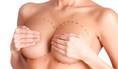 Breast Implant Removal | Clinique Dallas Plastic Surgery