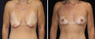 breast-lift-levantamiento-senos 1
