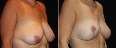 Breast Augmentation Mastopexy - Levantamiento de Senos Mastopexia | Clinique Dallas Plastic Surgery