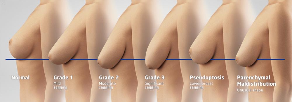 Breast Lift / Levantamiento de Senos | Plastic Surgery Clinique Dallas