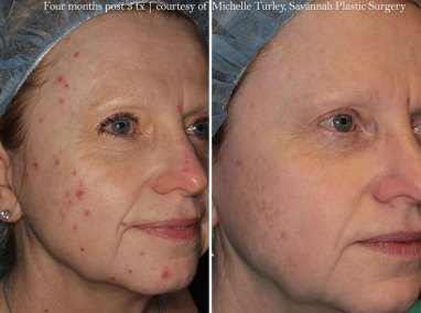 foreverclearbbl-before-after1