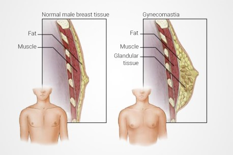 Gynecomastia | Plastic Surgery Clinique Dallas
