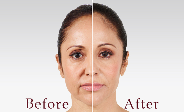 Juvederm - Dallas Medspa and Laser Center | Clinique Dallas