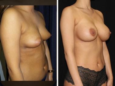 Liposuction / Liposuccion - Clinique Dallas Plastic Surgery