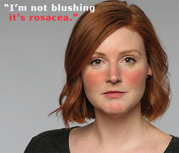 I'm not blushing - Rosacea - Control the flare - Clinique Dallas Plastic Surgery