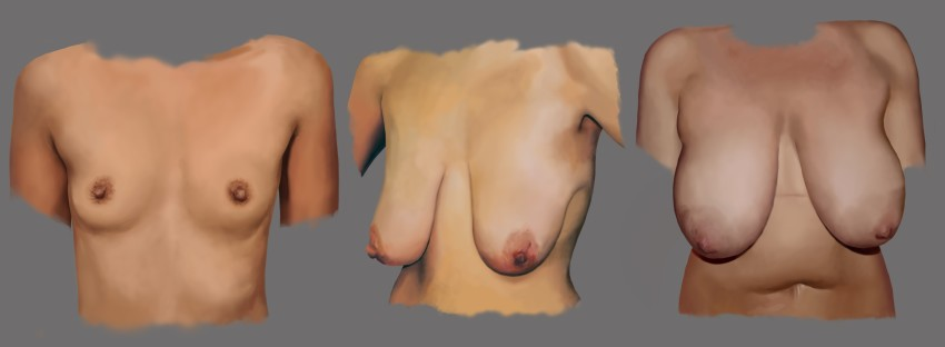 What's Cancer? - Dallas Breast Reconstruction - Plastic Surgery, Medspa and Laser Center | Clinique Dallas