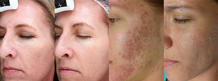 Dallas SkinPen Microneedling Treatment - Clinique Dallas Medspa and Laser Center