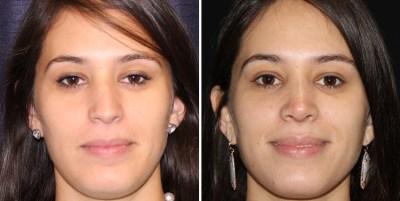 Rhinoplasty / Rinoplastia - Clinique Dallas Plastic Surgery