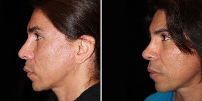 Rhinoplasty / Rinoplastia - Clinique Dallas Plastic Surgery
