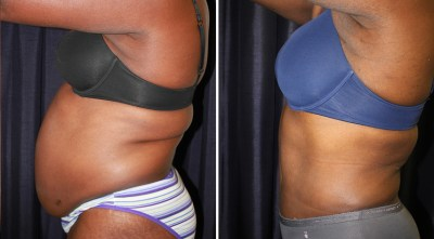 Tummy Tuck / Abdominoplasty - Plastic Surgery Medspa and Laser Center Clinique Dallas