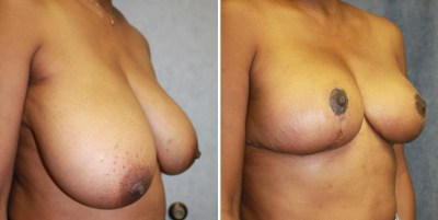Breast Reduction | Clinique Dallas Plastic Surgery