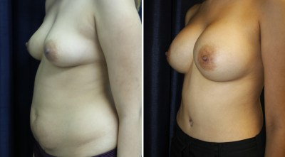 Mommy Makeover - Tummy Tuck / Abdominoplasty - Plastic Surgery Medspa and Laser Center Clinique Dallas