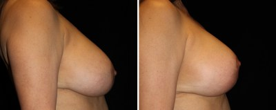 Breast Augmentation Mastopexy | Clinique Dallas Plastic Surgery