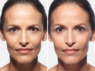 Dallas Juvederm XC - Clinique Dallas Plastic Surgery, Medspa and Laser Center