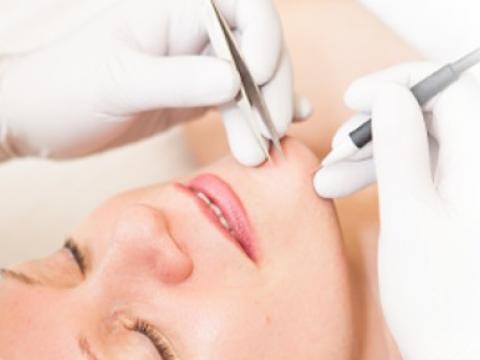 electrolysis clinique de beaut