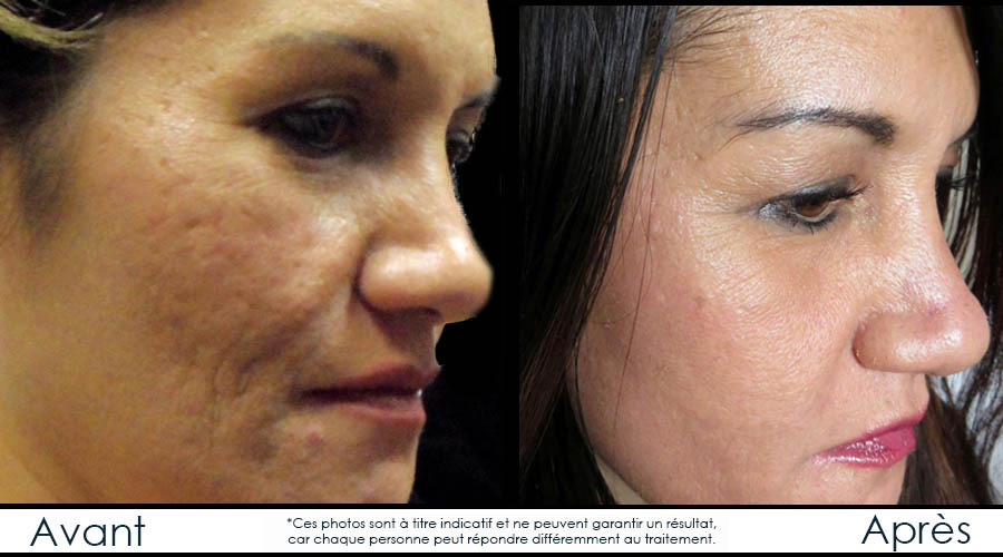 before-afterfr-microneedling