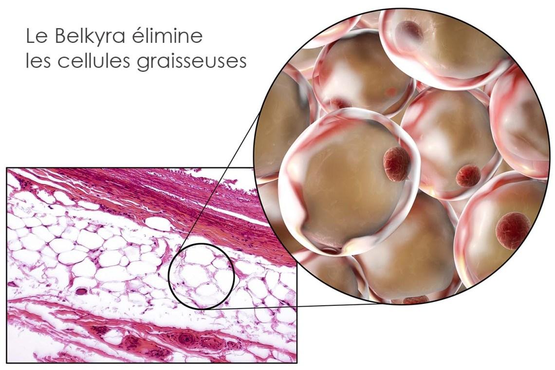 Cellule grasse – Belkyra-reduction du gras