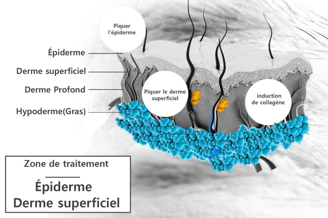 microneedling-zone-traitement