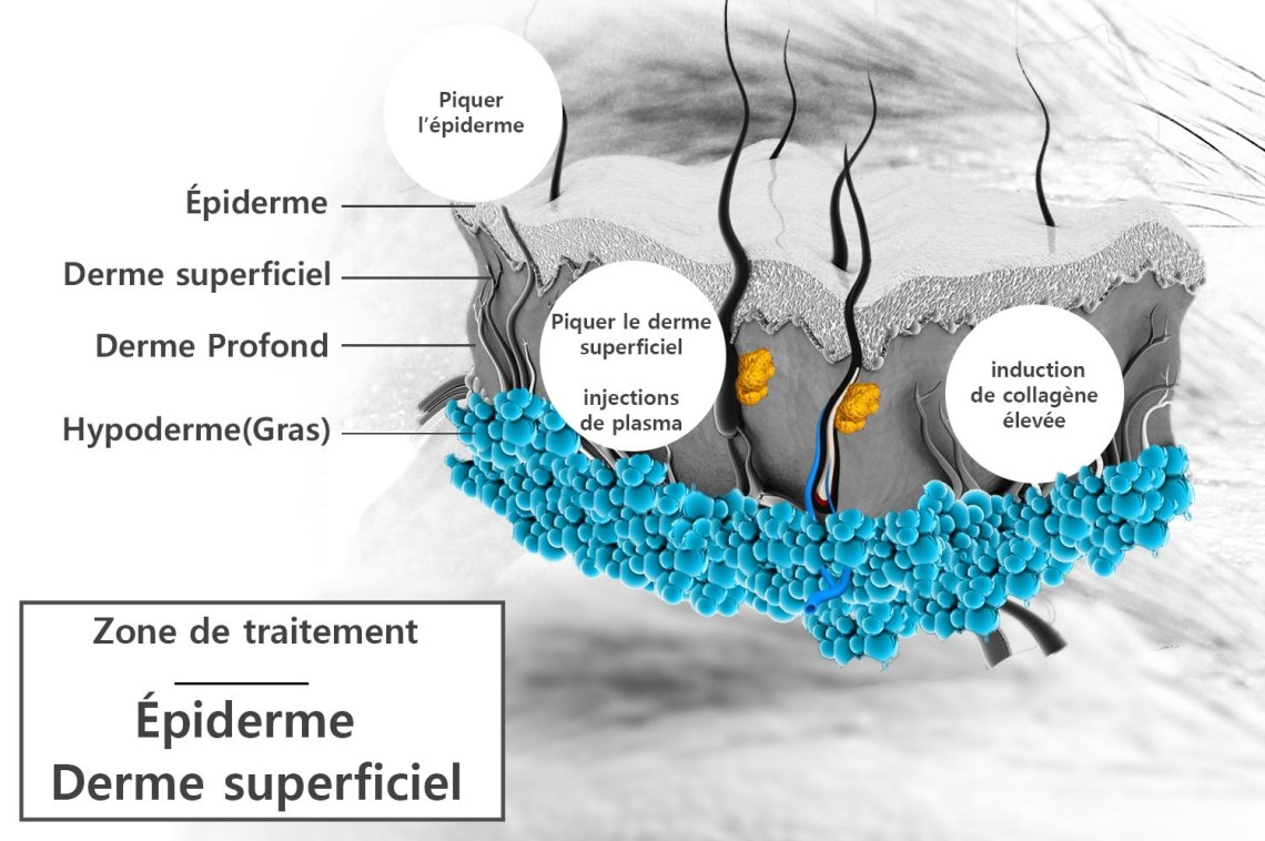 plasma-rich-plaquette